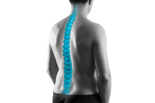 The human spine, sciatica and scoliosis isolated on white background, chiropractor treatment concept