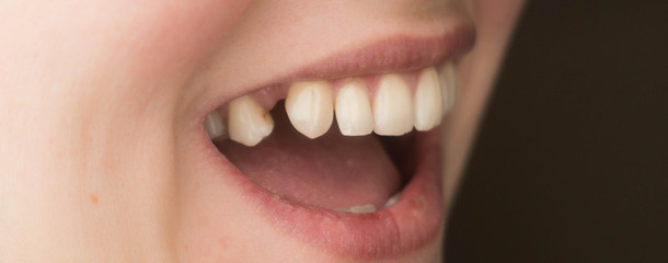 mouth with lack of tooth, teeth protetic problem
