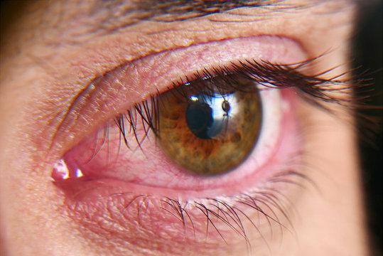 Red squirrel eyes, macro photo. Conjunctivitis, eye disease.