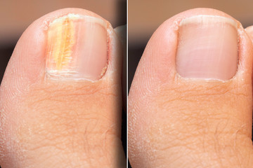 Before and after successful treatment for a fungal infection on toenail Wall mural