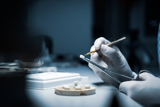 processing and correction of the dental crown. laboratory