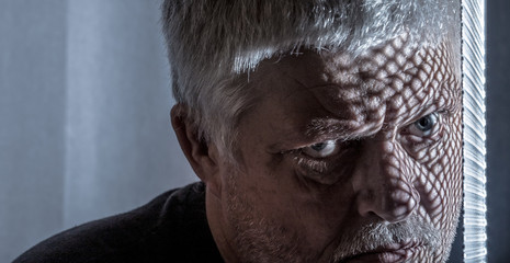 Portrait of a man with impaired health. A grid casts a shadow over his face. Concept: health problems.