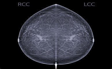 X-ray Digital Mammogram  or mammography  both side of the breast  CC view  for finding Breast cancer in women