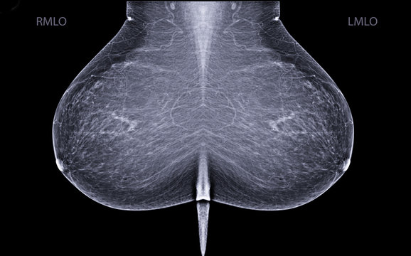 X-ray Digital Mammogram or mammography is x-ray image of the breast in women for screening  Breast cancer.