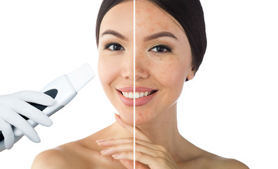 comparison face of beautiful woman with problem acne,blackhead, and after procedure ultrasound peeling skin are clean. Ultrasound Cavitation face peel skin before after Wall mural