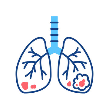 Lungs cancer line color icon. Human organ concept. Malignant neoplasm. Sign for web page, mobile app, button, logo.