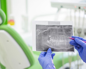Female dentist holding a dental x-ray. The nurse holds an x-ray from the human jaw and points to a tooth with caries. Periodontist's office.