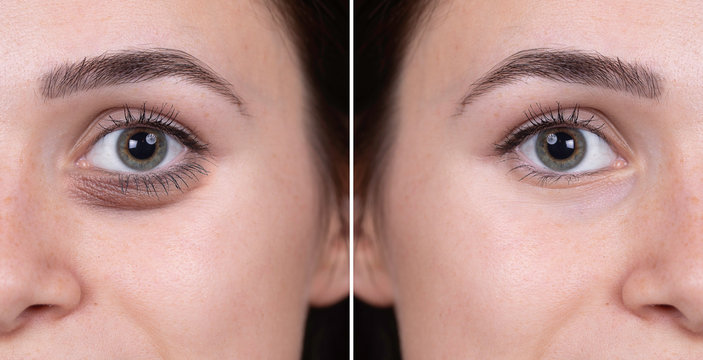 Eye bags before and after woman portrait comparison