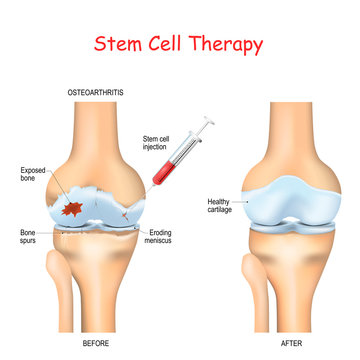 Stem cell therapy for pain in osteoarthritis