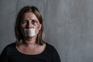Beaten up woman victim of domestic violence and abusewith covered her mouth