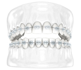 Teeth and Clear braces. Medically accurate dental 3D illustration