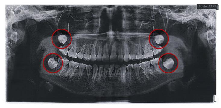 Dental x-ray for teeth surgery with the rudiments of wisdom teeth