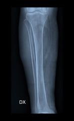 X-ray film of tibia bone.