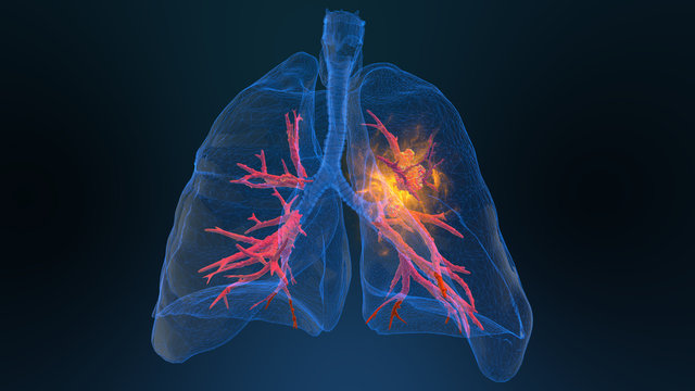 3d rendered illustration of lung cancer 3D illustration