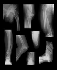 X-ray image showing lower extremity fractures
