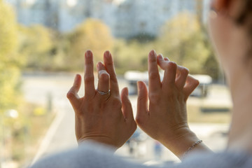Young woman having rheumatoid arthritis exposing her hands. Hands and legs are deformed. She feels pain. Selected focus.