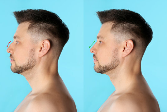 Man before and after plastic surgery on light blue background