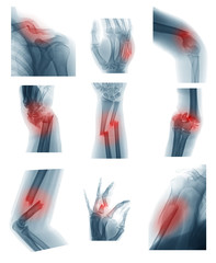Collection X-ray image showing upper limb or uper extremity fractures