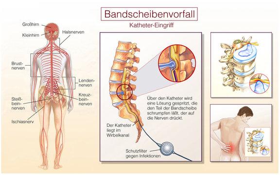 Bandscheibenvorfall. Katheter-Eingriff