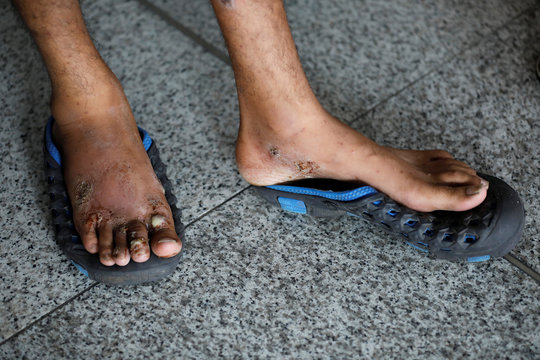 An Indian man, who according to local media was deported from Mexico, shows his feet which were swollen due to an allergy he suffered from walking in forests in Latin America while trying to get to the United Staes, in New Delhi