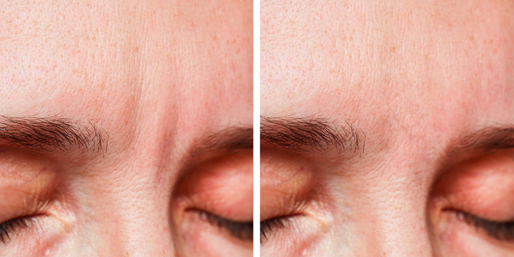 Woman Before, After a cosmetic procedure, eyebrow wrinkles