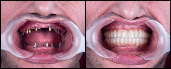full mought re construction by dental implants and ceramic crowns