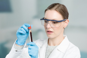woman with medical gloves is handling a blood probe in a test tube
