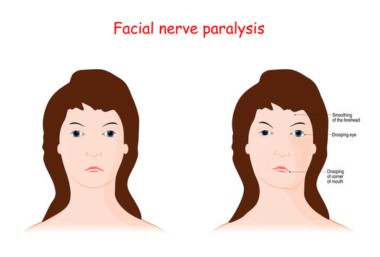 Facial nerve paralysis. Bell's palsy.