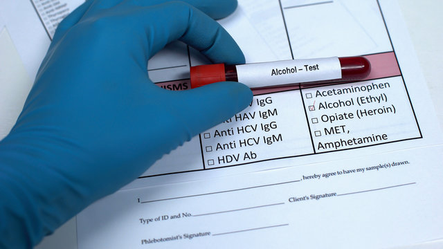 Alcohol test, doctor showing blood sample in tube, lab research, health checkup
