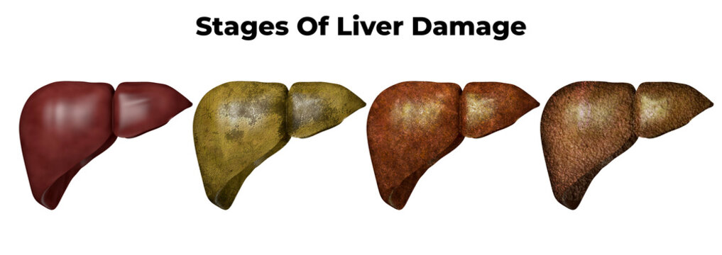 Stages of liver damage. The first symptoms of liver problems are abdominal pain, swollen belly, yellow skin and eyes, dark urine