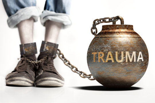 Trauma can be a big weight and a burden with negative influence - Trauma role and impact symbolized by a heavy prisoner's weight attached to a person, 3d illustration