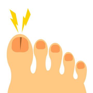 割れた足の爪