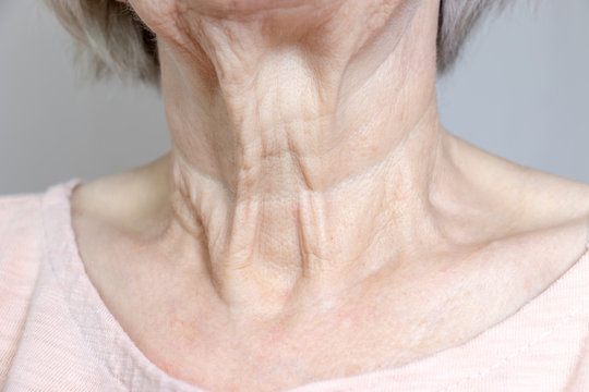 A flabby wrinkled excess skin on the neck of a senior woman close up