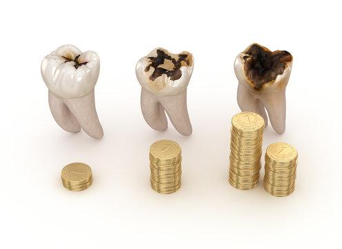 Dental restoration graph. 3D illustration concept