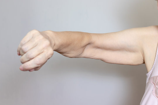 An excess loose skin on an arm of a senior elderly woman after extreme weight loss
