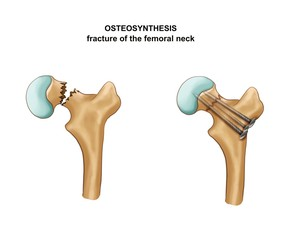 Fracture of the femoral neck. Osteosynthesis