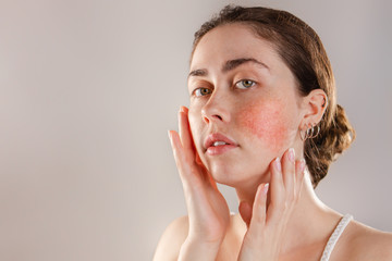 Medicine and cosmetology. Portrait of a young beautiful brunette woman with rosacea on her cheeks. Copy space
