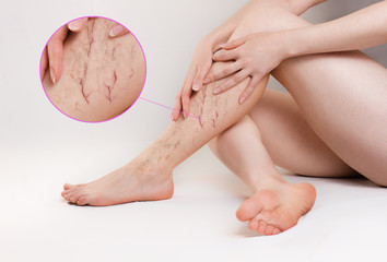 The concept of varicose disease and medicine. The woman sits with her slender legs crossed and her arms around them. A magnified image of the spider veins