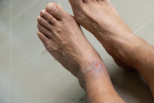 Foot ulcers caused by disease.