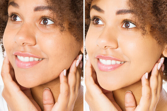 Before after close up african american woman face with acne and problem skin. Beauty skin care treatment. Before-after Facial problems. Dermatology cosmetology changing procedures. Afro beautiful girl