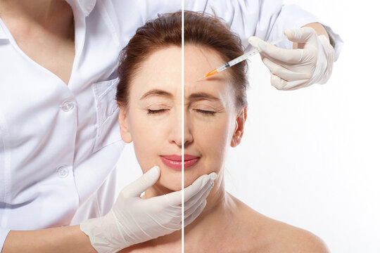 Forehead plastic surgery before and after. Middle age woman wrinkled face close up. Facial contouring, anti aging fillers concept. Mature female making beauty collagen procedure. Facelift before-after