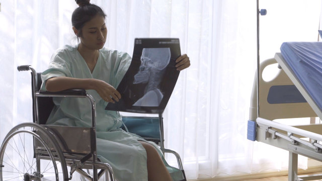 Serious patient looking at x-ray image of her brain injury surgery. Bad health result and medical malpractice concept.