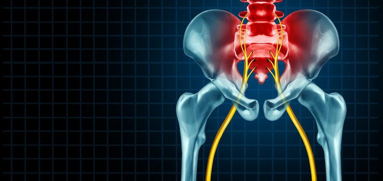 Painful Sciatic Nerve