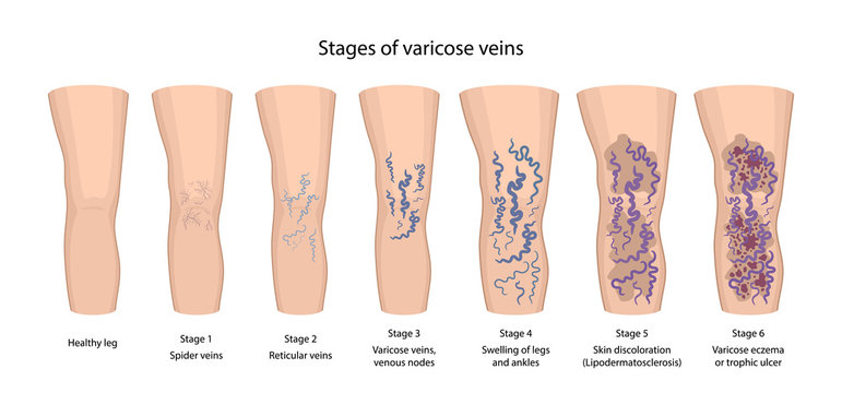 Stages of varicose veins: spider, reticular, nodes, swelling, discoloration skin, eczema, trophic ulcer. Image of healthy and diseased legs. Vector illustration in flat style with main description.