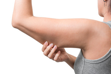 Asian woman pinching arm fat flabby skin isoloate on white background, with clipping path.