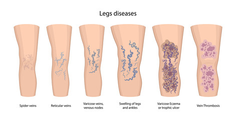Legs diseases: spider, reticular, nodes, swelling, discoloration skin, eczema, trophic ulcer, thrombophlebitis and thrombosis. Vector illustration in flat style isolated on white background