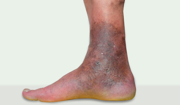 varicose veins leg ulcers