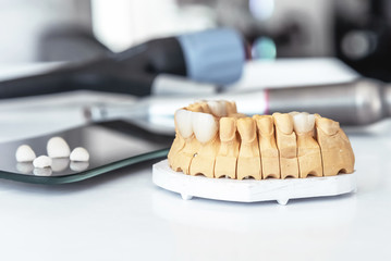 Artificial jaw with dental veneers and crowns in the office at the dentist.