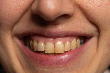 Person with yellow teeth close up