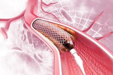 Stent angioplasty on scientific background